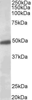 KCNJ6 / GIRK2 antibody (0.5µg/ml) staining of Human Brain (Substantia Nigra) lysate (35µg protein in RIPA buffer). Primary incubation was 1 hour. Detected by chemiluminescence.