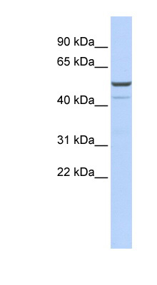 KCNK12 antibody LS-C110023 Western blot of OVCAR-3 cell lysate.  This image was taken for the unconjugated form of this product. Other forms have not been tested.