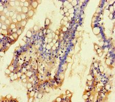 KCNK16 / TALK-1 Antibody - Immunohistochemistry of paraffin-embedded human small intestine tissue at dilution of 1:100