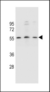 KCNK18 Antibody western blot of SiHa,U251,MCF-7 cell line lysates (35 ug/lane). The KCNK18 antibody detected the KCNK18 protein (arrow).