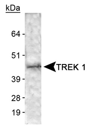 Detection of TREK 1 in human brain membrane lysate.  This image was taken for the unconjugated form of this product. Other forms have not been tested.