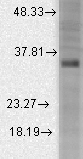 Western blot analysis of BKBeta3a in rat brain membrane lysates using a 1:1000 dilution of KCNMB3 antibody.  This image was taken for the unconjugated form of this product. Other forms have not been tested.