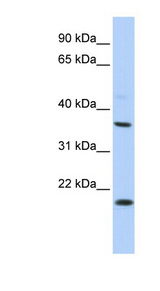 KCNMB3 antibody Western blot of HepG2 cell lysate. This image was taken for the unconjugated form of this product. Other forms have not been tested.
