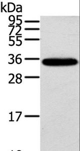 Western blot analysis of Mouse brain tissue, using KCNMB3 Polyclonal Antibody at dilution of 1:300.