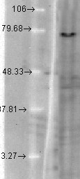 KCNQ1 (S37A-10), Mink-KvLQT1 in T-CHO.  This image was taken for the unconjugated form of this product. Other forms have not been tested.