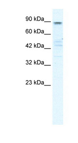 KCNQ2 antibody Western blot of HepG2 cell lysate. This image was taken for the unconjugated form of this product. Other forms have not been tested.