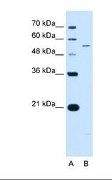 KCNQ2 Antibody - Lane A: Marker. Lane B: Jurkat cell lysate. Antibody concentration: 0.5 ug/ml. Gel concentration: 12%.  This image was taken for the unconjugated form of this product. Other forms have not been tested.
