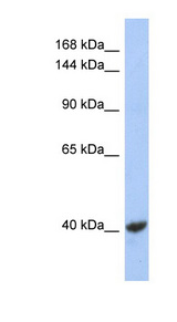 KCNQ2 antibody Western blot of NCI-H226 cell lysate. This image was taken for the unconjugated form of this product. Other forms have not been tested.