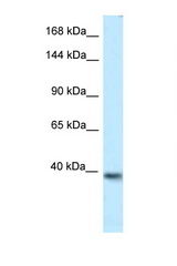 KCNQ2 antibody Western blot of Mouse Brain lysate. Antibody concentration 1 ug/ml.  This image was taken for the unconjugated form of this product. Other forms have not been tested.
