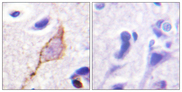 Immunohistochemistry analysis of paraffin-embedded human brain tissue, using Kv7.3/KCNQ3 Antibody. The picture on the right is blocked with the synthesized peptide.