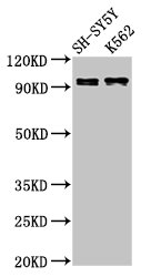 KCNQ3 Antibody - Positive Western Blot detected in SH-SY5Y whole cell lysate, K562 whole cell lysate. All lanes: KCNQ3 antibody at 3 µg/ml Secondary Goat polyclonal to rabbit IgG at 1/50000 dilution. Predicted band size: 97, 85 KDa. Observed band size: 97 KDa