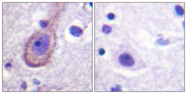 KCNQ3 Antibody - Immunohistochemistry analysis of paraffin-embedded human brain, using Kv7.3/KCNQ3 (Phospho-Thr246) Antibody. The picture on the right is blocked with the phospho peptide.