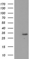 KCTD14 Antibody - HEK293T cells were transfected with the pCMV6-ENTRY control (Left lane) or pCMV6-ENTRY KCTD14 (Right lane) cDNA for 48 hrs and lysed. Equivalent amounts of cell lysates (5 ug per lane) were separated by SDS-PAGE and immunoblotted with anti-KCTD14.
