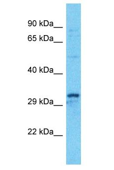 KCTD15 antibody Western Blot of HT1080. Antibody dilution: 1 ug/ml.  This image was taken for the unconjugated form of this product. Other forms have not been tested.