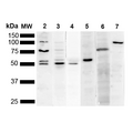 Western Blot analysis of Human Cervical cancer cell line (HeLa) lysate showing detection of Multiple KDEL protein using Mouse Anti-KDEL Monoclonal Antibody, Clone 2C1. Lane 1: Molecular Weight Ladder (MW). Lane 2: Anti-KDEL. Lane 3: Anti-KDEL control. Lane 4: Anti-PDI control. Lane 5: Anti-Calreticulin control. Lane 6: Anti-GRP78 control. Lane 7: Anti-GRP94 control.. Load: 10 µg. Block: 5% Skim Milk powder in TBST. Primary Antibody: Mouse Anti-KDEL Monoclonal Antibody  at 1:1000 for 2 hours at RT. Secondary Antibody: Goat Anti-Mouse IgG:HRP at 1:5000 for 1 hour at RT. Color Development: ECL solution for 5 min in RT. Predicted/Observed Size: Multiple.