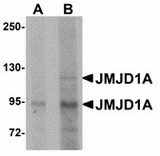 Western blot of JMJD1A in mouse liver tissue lysate with JMJD1A antibody at (A) 1 and (B) 2 ug/ml. Below: Immunohistochemistry of JMJD1A in rat liver tissue with JMJD1A antibody at 5 ug/ml.