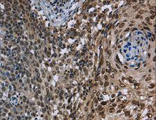 KDM3B / JMJD1B Antibody - Immunohistochemistry of paraffin-embedded Human cervical cancer using KDM3B Polyclonal Antibody at dilution of 1:40.