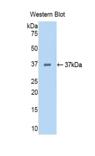 KDR / VEGFR2 / FLK1 Antibody - Western blot of recombinant KDR / VEGFR2.  This image was taken for the unconjugated form of this product. Other forms have not been tested.