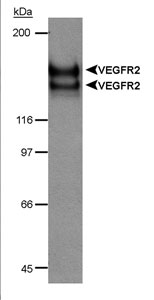KDR / VEGFR2 / FLK1 Antibody - Detection of VEGFR-2 doublet in CSF-1 receptor/VEGFR2 chimera transfected lysate (20 ug) using VEGFR-2  Antibody (Hemangioblast Marker) (6 ug/ml). ECL detection 30 seconds.  This image was taken for the unconjugated form of this product. Other forms have not been tested.