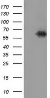 KEAP1 Antibody - HEK293T cells were transfected with the pCMV6-ENTRY control (Left lane) or pCMV6-ENTRY KEAP1 (Right lane) cDNA for 48 hrs and lysed. Equivalent amounts of cell lysates (5 ug per lane) were separated by SDS-PAGE and immunoblotted with anti-KEAP1.