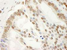 KHDRBS1 / SAM68 Antibody - Detection of Human SAM68 by Immunohistochemistry. Sample: FFPE section of human prostate carcinoma. Antibody: Affinity purified rabbit anti-SAM68 used at a dilution of 1:1000 (0.2 ug/ml). Detection: DAB.