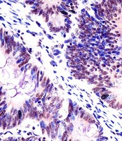 KHDRBS1 / SAM68 Antibody - Antibody staining KHDRBS1 in human colorectal carcinoma tissue sections by Immunohistochemistry (IHC-P - paraformaldehyde-fixed, paraffin-embedded sections). Tissue was fixed with formaldehyde and blocked with 3% BSA for 0. 5 hour at room temperature; antigen retrieval was by heat mediation with a citrate buffer (pH 6). Samples were incubated with primary antibody (1:25) for 1 hours at 37°C. A undiluted biotinylated goat polyvalent antibody was used as the secondary antibody.