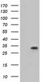 HEK293T cells were transfected with the pCMV6-ENTRY control (Left lane) or pCMV6-ENTRY KHK (Right lane) cDNA for 48 hrs and lysed. Equivalent amounts of cell lysates (5 ug per lane) were separated by SDS-PAGE and immunoblotted with anti-KHK.