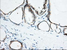 IHC of paraffin-embedded Human thyroid tissue using anti-KHK mouse monoclonal antibody. (Dilution 1:50).