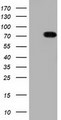 HEK293T cells were transfected with the pCMV6-ENTRY control (Left lane) or pCMV6-ENTRY TTLL12 (Right lane) cDNA for 48 hrs and lysed. Equivalent amounts of cell lysates (5 ug per lane) were separated by SDS-PAGE and immunoblotted with anti-TTLL12.