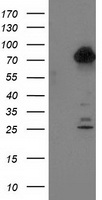 KIAA0153 / TTLL12 Antibody - HEK293T cells were transfected with the pCMV6-ENTRY control (Left lane) or pCMV6-ENTRY TTLL12 (Right lane) cDNA for 48 hrs and lysed. Equivalent amounts of cell lysates (5 ug per lane) were separated by SDS-PAGE and immunoblotted with anti-TTLL12.