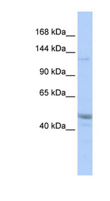 KIAA0319L Antibody - KIAA0319L antibody Western blot of MCF7 cell lysate. This image was taken for the unconjugated form of this product. Other forms have not been tested.