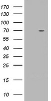 KIAA0517 / TRIM2 Antibody - HEK293T cells were transfected with the pCMV6-ENTRY control (Left lane) or pCMV6-ENTRY TRIM2 (Right lane) cDNA for 48 hrs and lysed. Equivalent amounts of cell lysates (5 ug per lane) were separated by SDS-PAGE and immunoblotted with anti-TRIM2.