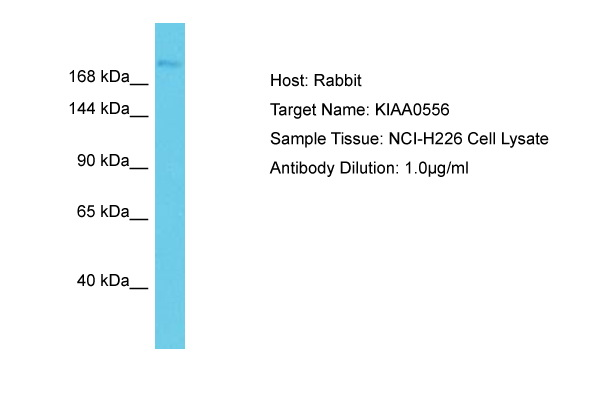 KIAA0556 Antibody -  This image was taken for the unconjugated form of this product. Other forms have not been tested.