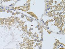 KIAA0652 / ATG13 Antibody - Immunohistochemistry of paraffin-embedded rat testis using ATG13 antibodyat dilution of 1:100 (40x lens).
