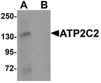 KIAA0703 / SPCA2 Antibody - Western blot analysis of ATP2C2 in 3T3 cell lysate with ATP2C2 antibody at 1 ug/ml in (A) the absence and (B) the presence of blocking peptide.