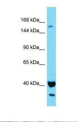 Western blot of Human MCF9. KIAA1683 antibody dilution 1.0 ug/ml.  This image was taken for the unconjugated form of this product. Other forms have not been tested.