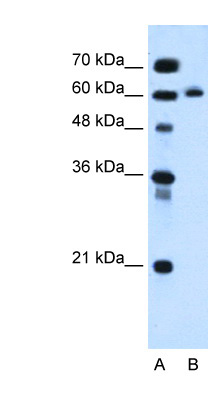 ITPRIPL1 / KIAA1754L antibody LS-C40485 Western blot of HepG2 cell lysate.  This image was taken for the unconjugated form of this product. Other forms have not been tested.