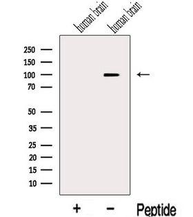 KIF19 Antibody - Western blot analysis of extracts of human brain tissue using KIF19 antibody. The lane on the left was treated with blocking peptide.