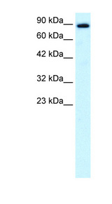 KIF21A antibody Western blot of Fetal Brain lysate. This image was taken for the unconjugated form of this product. Other forms have not been tested.