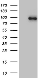 KIF6 Antibody - HEK293T cells were transfected with the pCMV6-ENTRY control. (Left lane) or pCMV6-ENTRY KIF6. (Right lane) cDNA for 48 hrs and lysed. Equivalent amounts of cell lysates. (5 ug per lane) were separated by SDS-PAGE and immunoblotted with anti-KIF6. (1:2000)