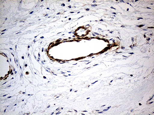 KIF6 Antibody - Immunohistochemical staining of paraffin-embedded Human breast tissue within the normal limits using anti-KIF6 mouse monoclonal antibody. (Heat-induced epitope retrieval by 1mM EDTA in 10mM Tris buffer. (pH8.5) at 120°C for 3 min. (1:500)