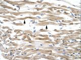KIFC2 antibody ARP33950_T100-NP_665697-KIFC2 (kinesin family member C2) Antibody was used in IHC to stain formalin-fixed, paraffin-embedded human muscle.  This image was taken for the unconjugated form of this product. Other forms have not been tested.