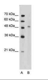 KIN17 / KIN Antibody - Jurkat Cell Lysate.  This image was taken for the unconjugated form of this product. Other forms have not been tested.