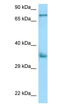 CD158b / KIR2DS2 antibody Western Blot of A549.  This image was taken for the unconjugated form of this product. Other forms have not been tested.