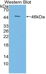 Western blot of KISS1 / Kisspeptin / Metastin antibody using a recombinant protein encoding aa 1-126 with a His and GST tag.