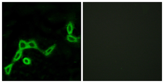 Immunofluorescence analysis of LOVO cells, using KISS1R Antibody. The picture on the right is blocked with the synthesized peptide.