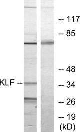 KLF / Kruppel-Like Factor Antibody - Western blot analysis of lysates from Jurkat cells, treated with serum 20% 15', using KLF Antibody. The lane on the right is blocked with the synthesized peptide.