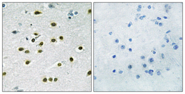 KLF10 + KLF11 Antibody - Immunohistochemistry analysis of paraffin-embedded human brain tissue, using KLF10/11 Antibody. The picture on the right is blocked with the synthesized peptide.