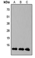 KLF10 + KLF11 Antibody - Western blot analysis of KLF10/11 expression in HEK293T (A); Raw264.7 (B); PC12 (C) whole cell lysates.