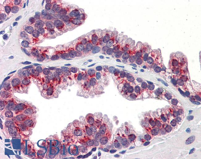 Anti-KLF4 antibody IHC of human prostate. Immunohistochemistry of formalin-fixed, paraffin-embedded tissue after heat-induced antigen retrieval. Antibody concentration 5 ug/ml.  This image was taken for the unconjugated form of this product. Other forms have not been tested.